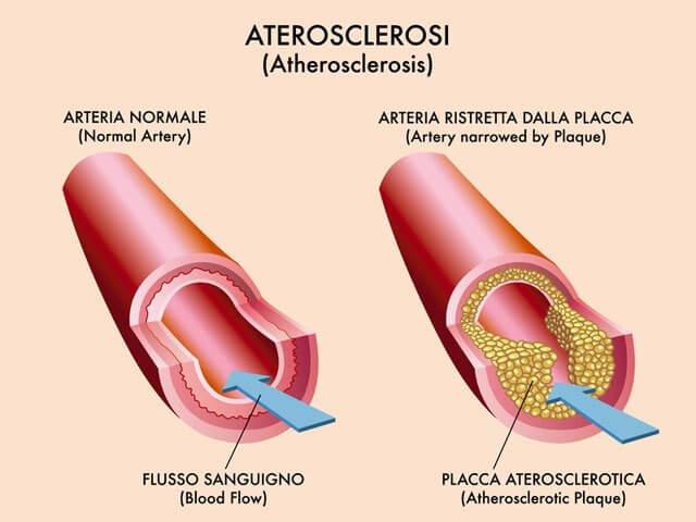 aloe vera gel colesterolo LDL