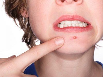 aloe vera per acne