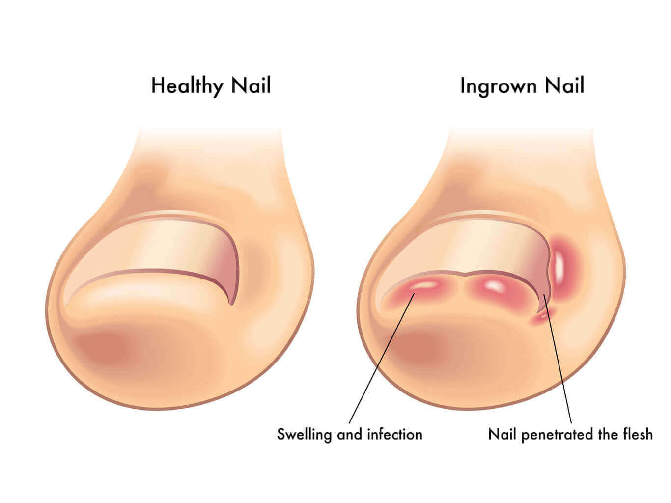 Ingrown nail Treat it with aloe vera! | Maltaloe.com