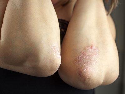 aloe vera e dermatite
